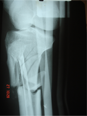 afmc orthopedie traumatologie fracture luxation